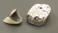 保険の前歯と奥歯