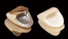 セラミック前歯と前装冠